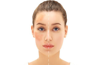 Peel for Rosacea