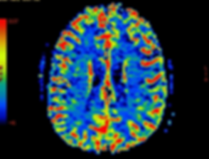 Brain-scan SMALLER.png