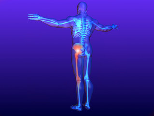 Got Sciatica? Now What?