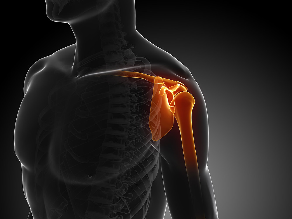 what is shoulder impingment