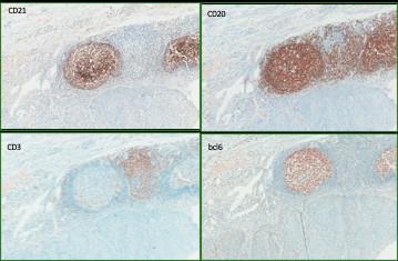 Descrevendo o sistema imune nos tumores