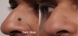 Dark Mole