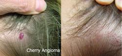 Cherry Angioma