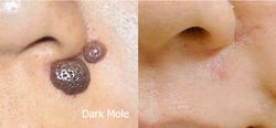 Dark Moles