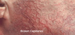 Broken Capillaries