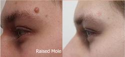 Raised Mole