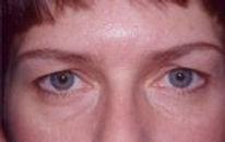 eyelid_surgery_11.jpg