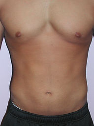 Abs-After4.jpg