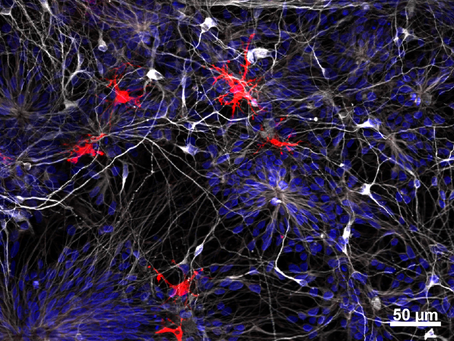 Die Neuron-Mikroglia Interaktion