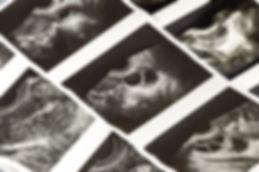 Photo shots of Medical ultrasound, diagn