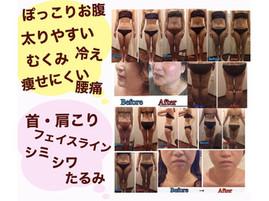 熊本痩身エステサロン☆ハイパーナイフフェイシャル研修頑張ってます