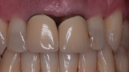 Aesthetic Dentistry: Crown Replacement - Before