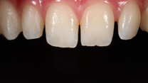 Gap Closure With Composite Bonding - Before