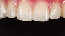 Gap Closure With Composite Bonding - After