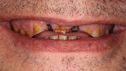 Comprehensive Smile Makeover - Before