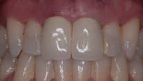 Aesthetic Dentistry: Crown Replacement - After