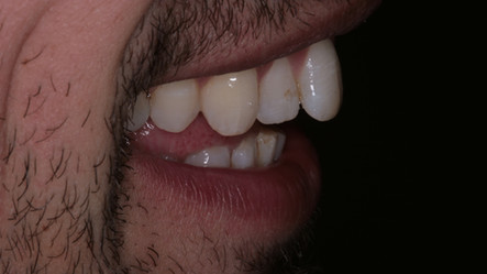 Orthodontic Alignment - Before