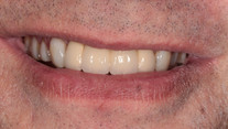 Comprehensive Smile Makeover - After
