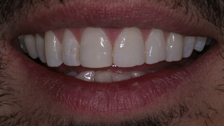 Orthodontic Alignment - After