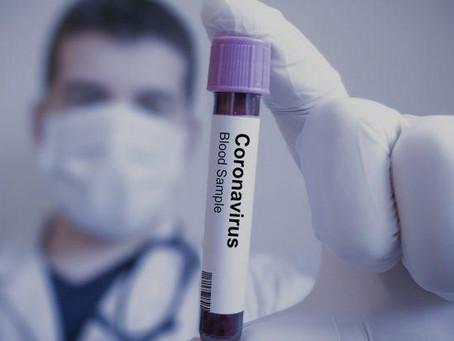 Campos Gerais totaliza 12.256 casos de novo coronavírus