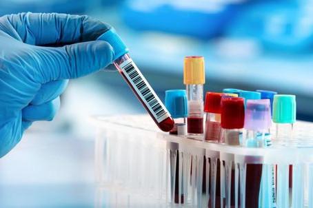 Campos Gerais acumulam 11.812 registros de coronavírus