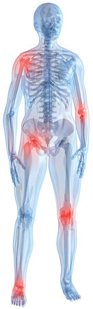 image of a person showing areas of joint pain