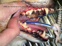 מצב הפה לאחר הניקוי