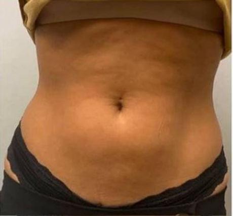 Tummy 3 Before.JPG