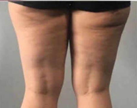 Thighs 2 after.JPG