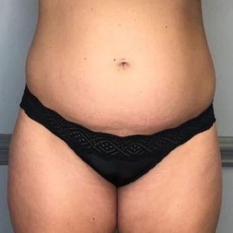 Tummy 2 Before.JPG