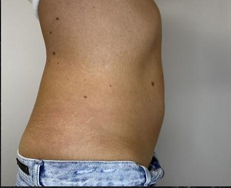 Tummy 7 after.JPG