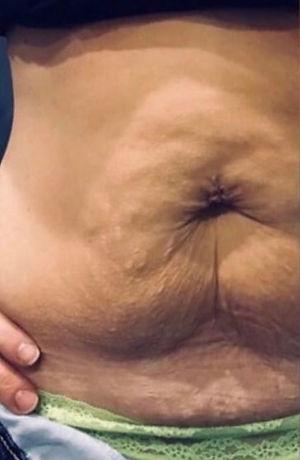 Tummy 5 Before.JPG