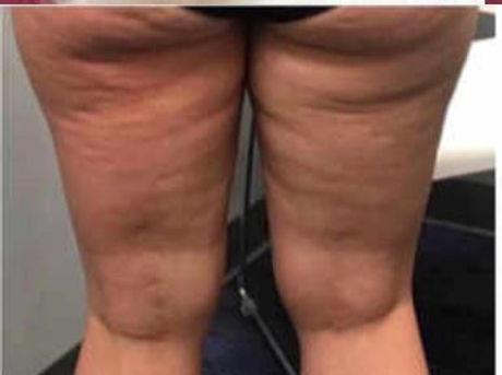 Thighs 1 before.JPG
