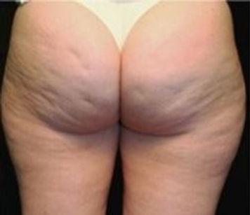 Butt 1 before.JPG