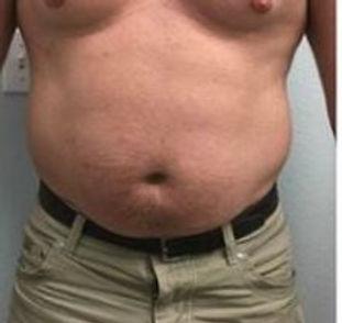 Man Belly 1 before.JPG
