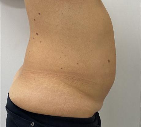 Tummy 7 Before.JPG