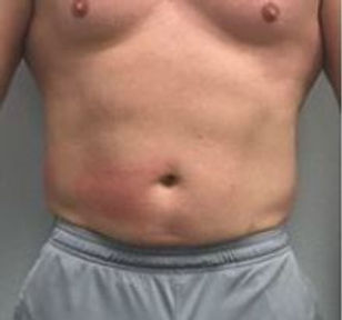 Man Belly 2 After.JPG