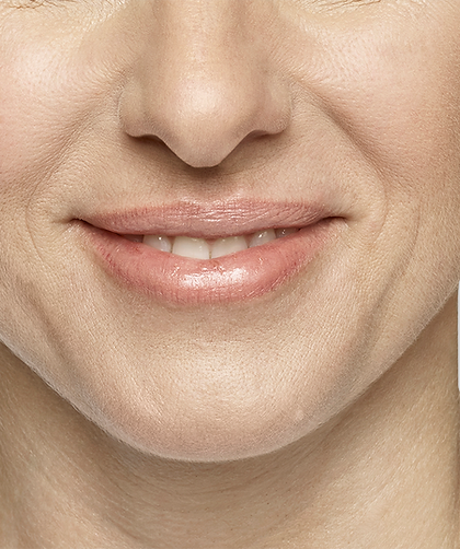 Restylane Silk lip filler to add volume and augment your lips