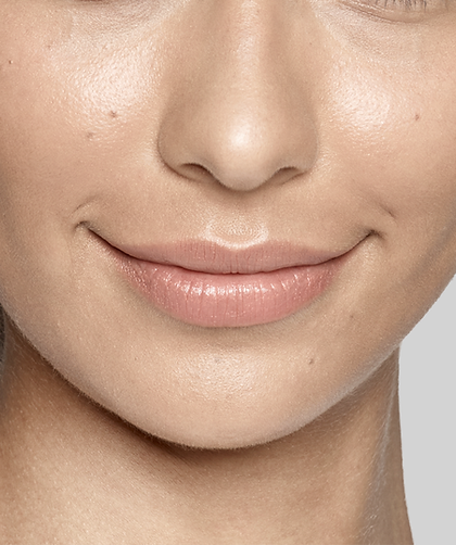 Restylane Lyft for cheek augmenatio and correction of wrinkles and folds like smile line