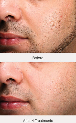 Exceed-Before-After.jpg