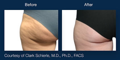 Before and After Wrinkle Reduction Scottsdale