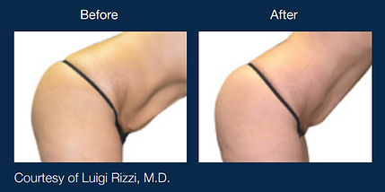 Before and After Skin Tightening Scottsdale