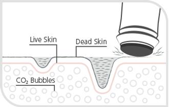 Exfoliate-Step1.png