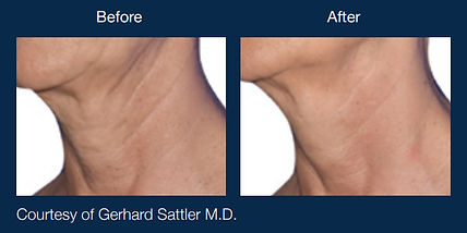 Before and After Cellulite Reduction Scottsdale