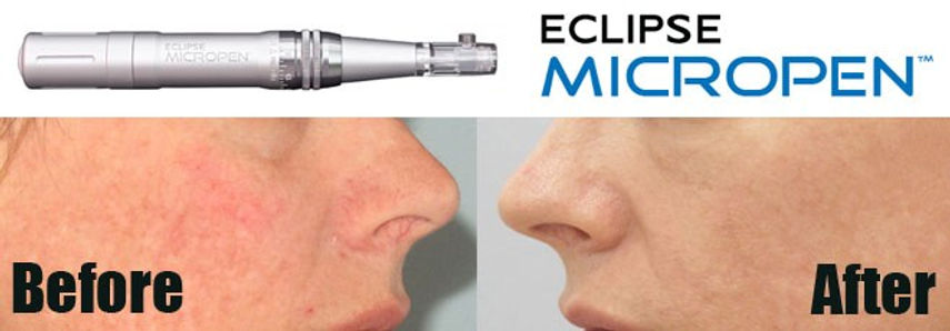 Eclipse-Micropen-Acne-Scar-Removal-Befor