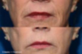 thermi-face3.jpg