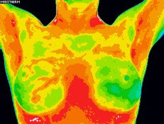 The Best Breast Test: Exploring Thermography (Part One)