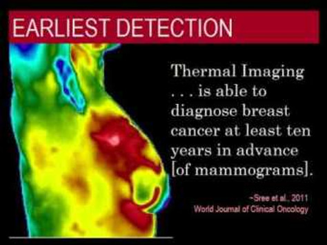 The Best Breast Test: Exploring Thermography (Part Two)