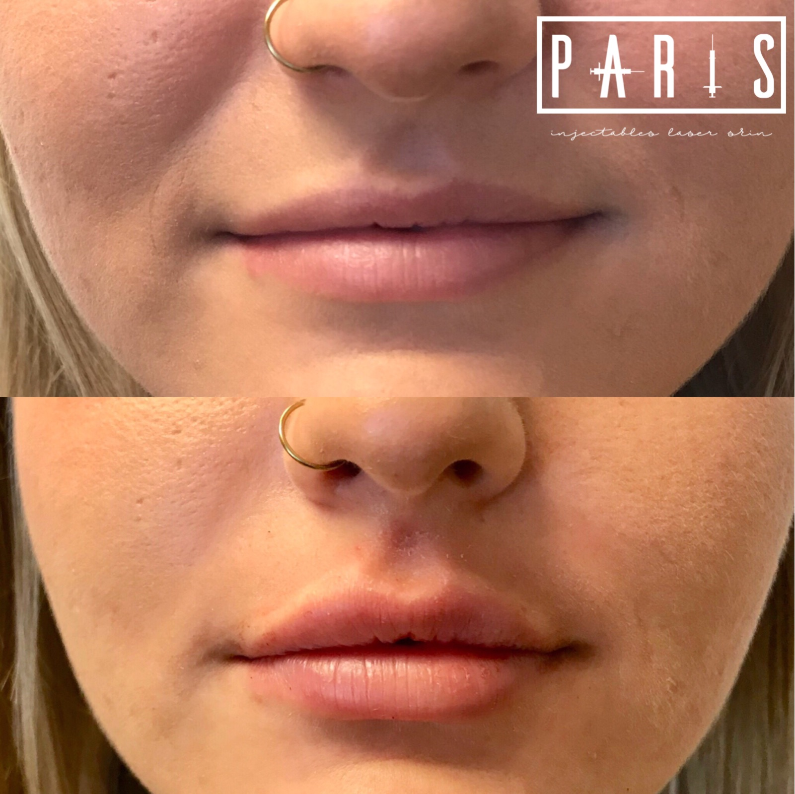 ParisPlump.Lips.Filler.Scottsdale.AZ.Beforeandafter.ParisInjectables.Vollure