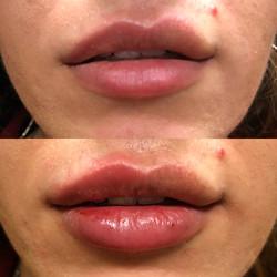 ParisPlump.Uneven.Lips.Filler.Scottsdale.AZ.Beforeandafter.ParisInjectables.17
